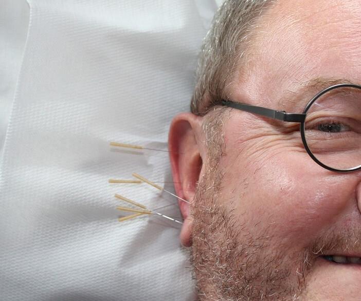 fülakupunktúra, akupunktúra